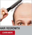 baldness & hair regrowth treatment | stem cell treatment